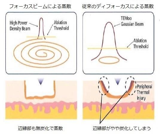 日帰り婦人科手術 (CO2レーザー) - 新横浜駅徒歩1分の婦人科 ...